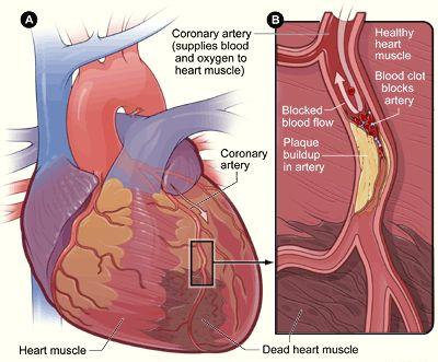 Coronary Artery Stenosis