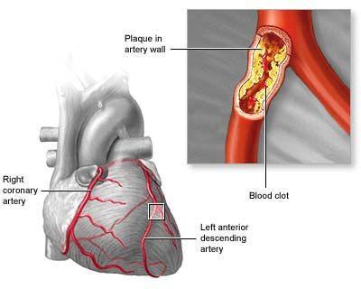 Left Main Coronary Stenosis