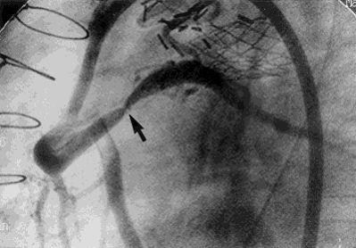 Stenosis Coronary Artery, Critical Stenosis Coronary Artery